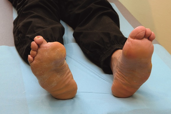 Every year thousands of people lose their toes and limbs due to diabetic-related complications