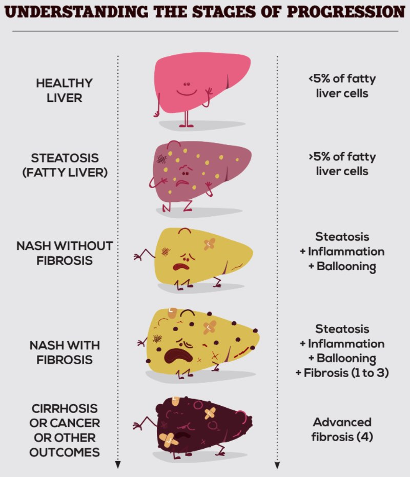 Healthy vs fatty liver