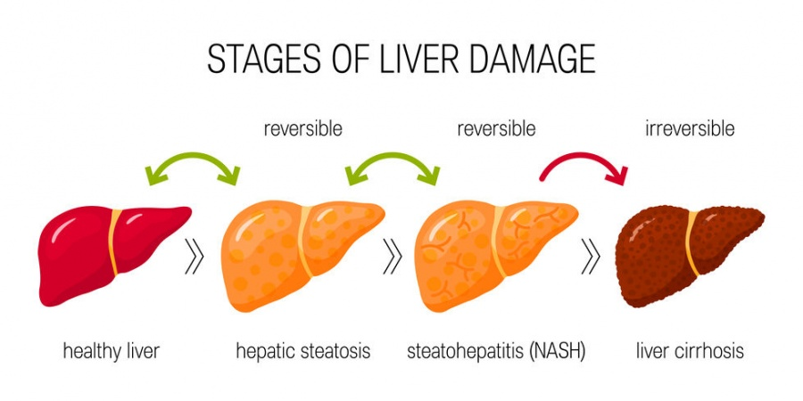 Fatty liver and liver damage is also associated with diabetes