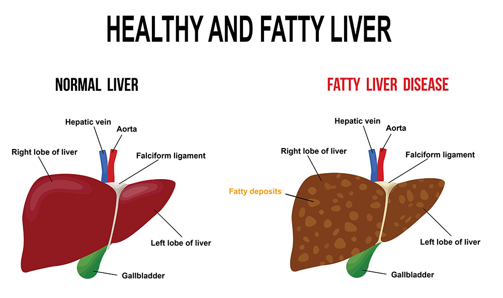 Fatty liver is accumulation of fat in your liver