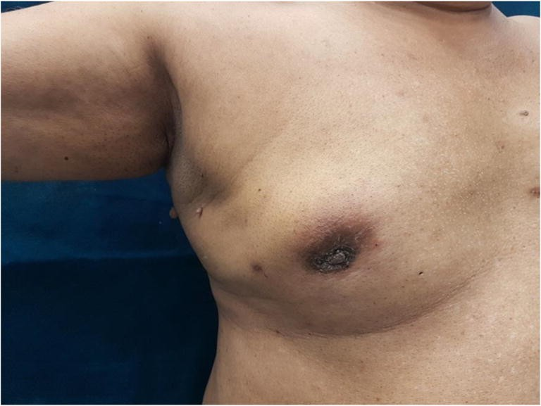 Nipple and skin retraction over the breast are some of the skin changes associated with breast cancer
