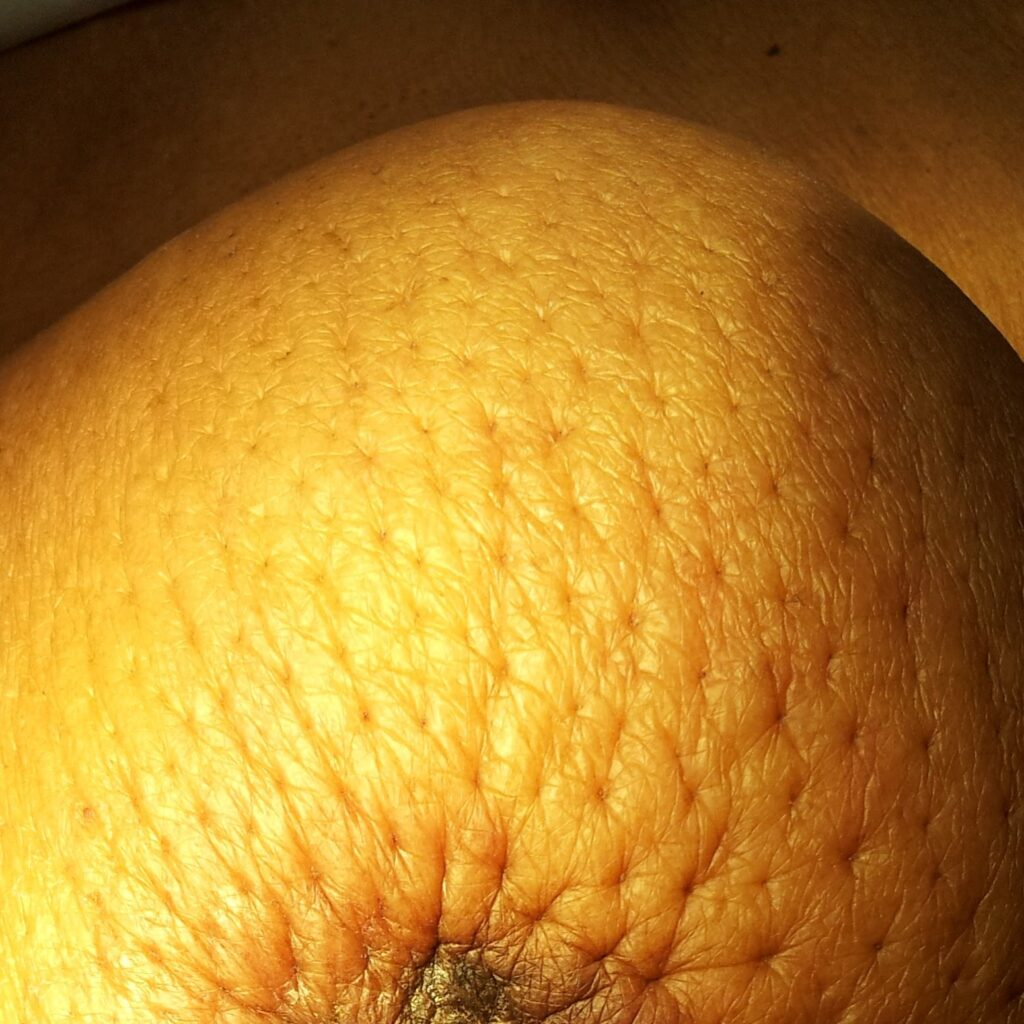 Peau d'range (orange peal) appearance of skin, it's a skin change associated with breast cancer